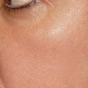 pigmentation_after