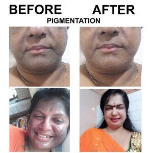 pigmentation-before-after-images-skincare-trivandrum