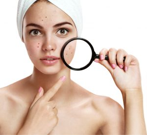 7 Dark Spot Treatments That Really Work, According to